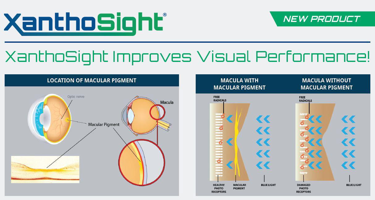 XanthoSight product data sheet